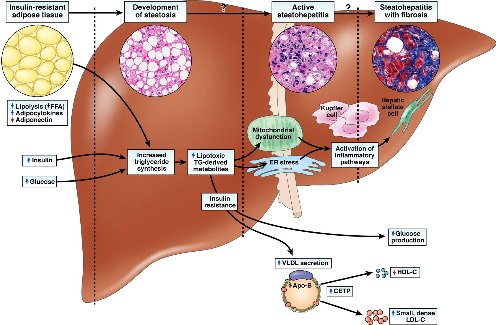 pathophysiology of liver diseases Looking for online definition of liver disease in the medical dictionary liver disease explanation the disease lasts a long time and causes permanent liver damage.