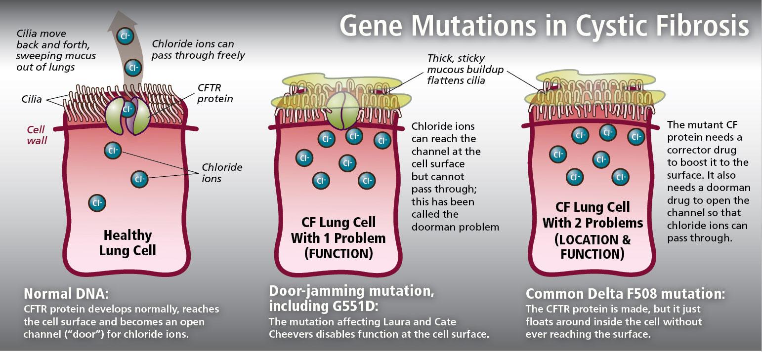 cystic fibrosis mutations - Vertex провернет революцию в лечении муковисцидоза
