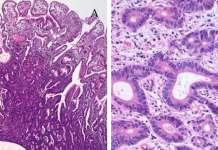 gastric-adenocarcinoma