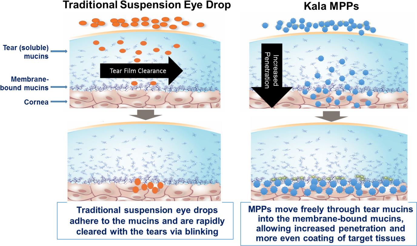 Kala Pharmaceuticals: синдром сухого глаза под вопросом