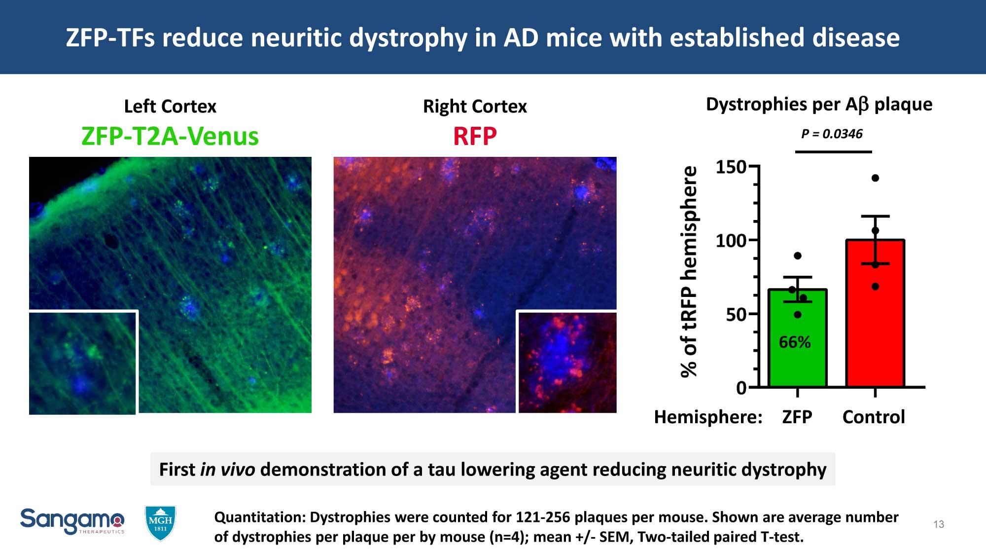 Боковой амиотрофический склероз попробуют вылечить генным регулированием