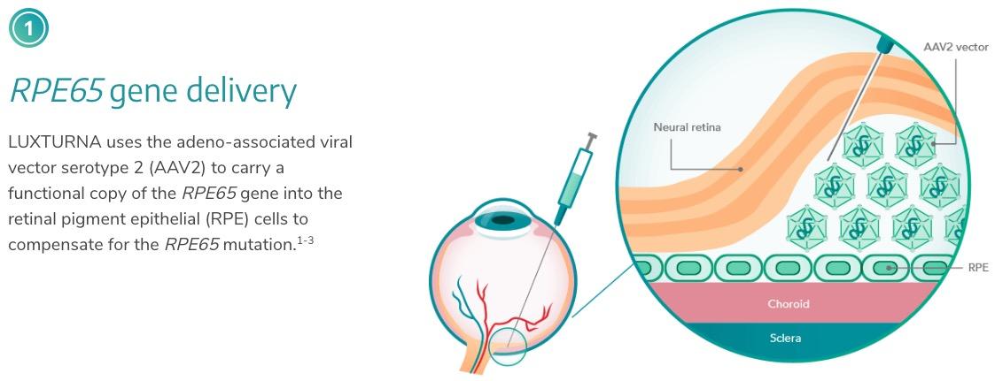«Лукстурна»: первая настоящая генотерапия