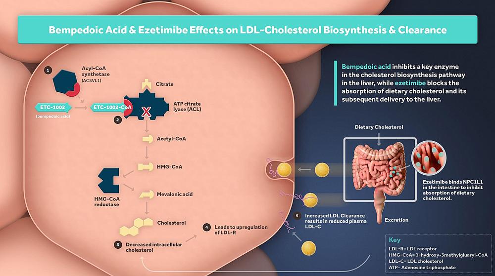 bempedoic acid moa - Бемпедоевая кислота: сильный удар по атеросклерозу