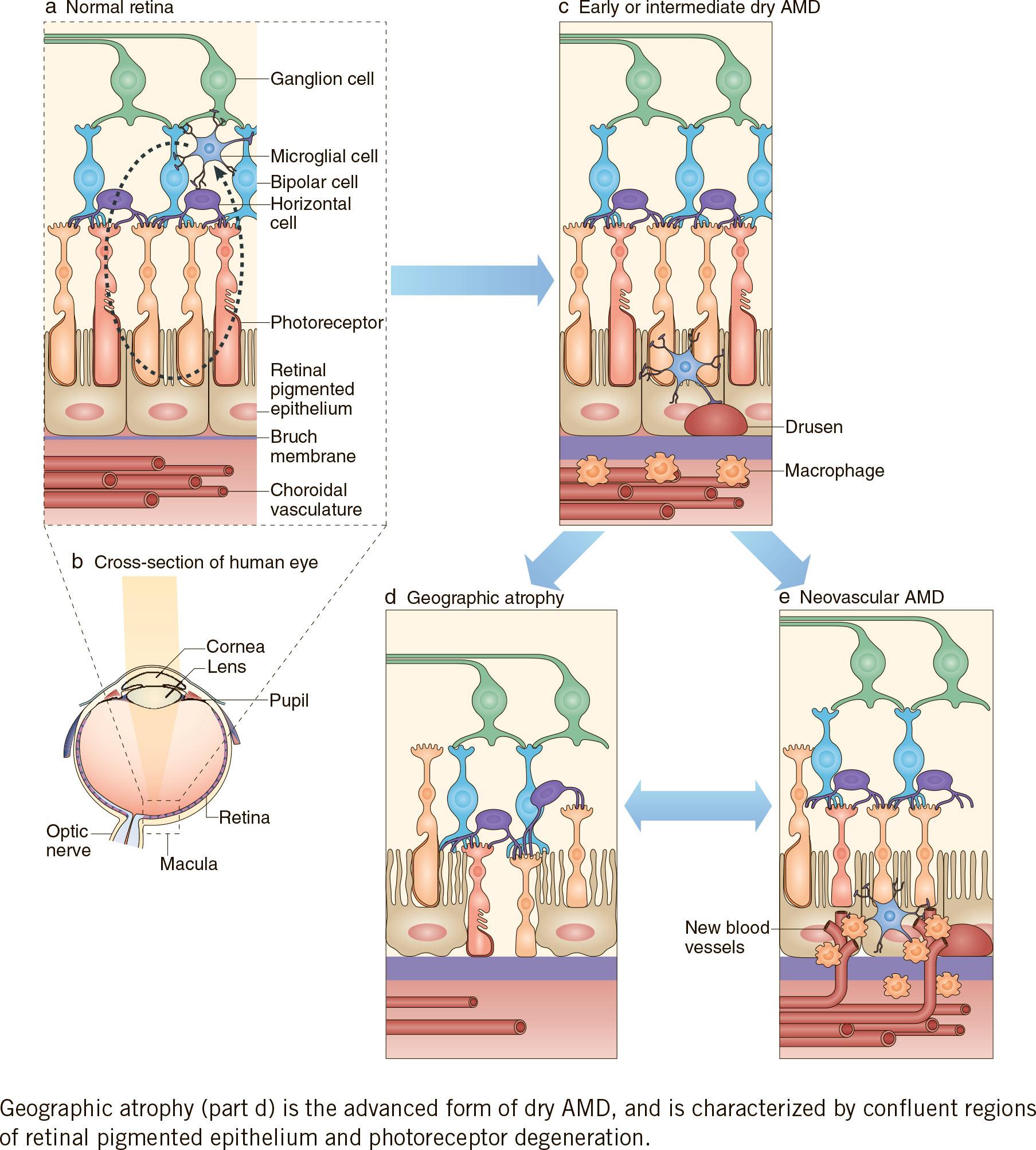 geographic atrophy - «Зимура»: возможно, первое лекарство против сухой возрастной макулодистрофии
