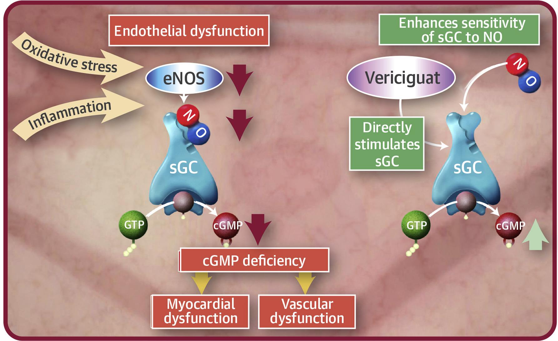 vericiguat moa - Верицигуат: предполагаемая новая терапия хронической сердечной недостаточности